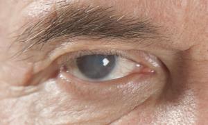 UNAM y Fundación Markoptic crean dispositivo para tratar glaucoma